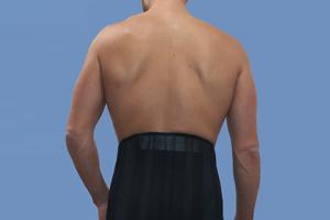 ortho-corset